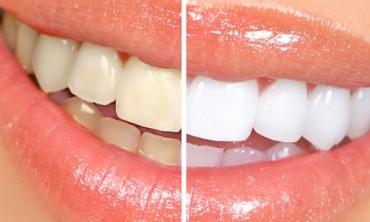 من طبيب الأسنان إليك , عشرة نصائح لأسنان بيضاء وصحية