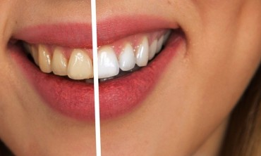 الطريقة الأكثر فعالية للحفاظ على أسنانك بيضاء بشكل طبيعي