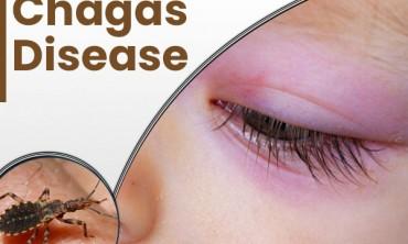 مرض شاغاس (مرض المقليات الأمريكي )shagas deseas